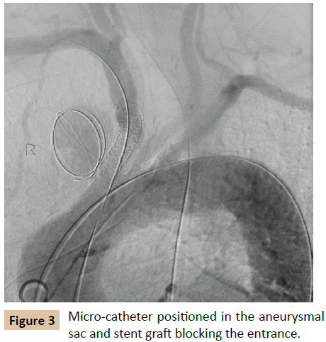 vascular-endovascular-therapy-Micro-catheter-positioned